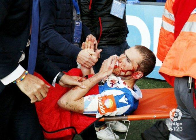 Зашиха футболист със 70 шева след ритник в лицето (видео)