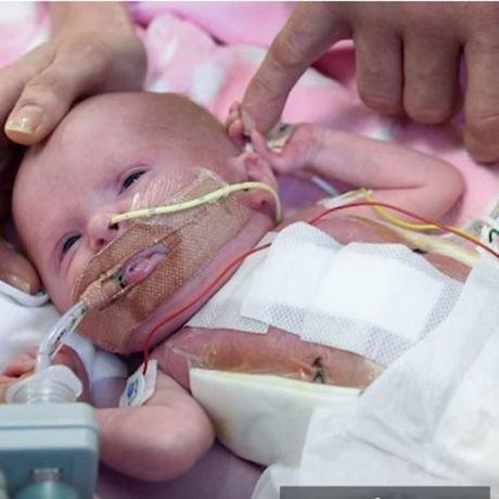 Спасиха бебе с трансплантация на сърце