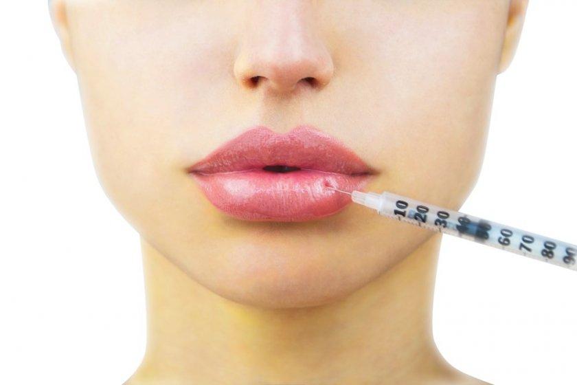 Какво трябва да знаете, преди да си напомпате устните