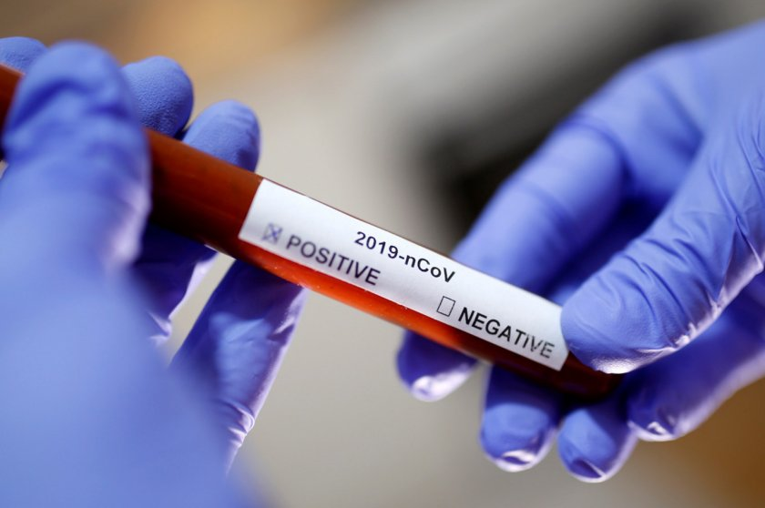 COVID-19: 3354 нови случая на коронавирус, жертвите са 58