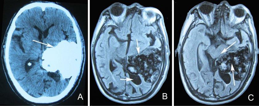 Махнаха 1-килограмов тумор от главата на мъж