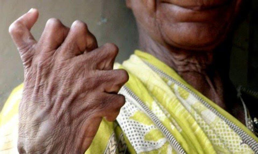 Обявиха за вещица индийка с 31 пръста