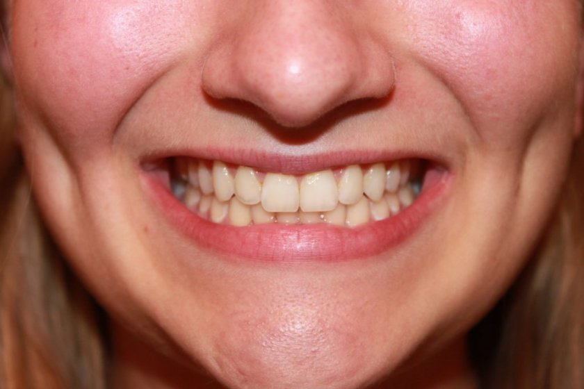 Мизерия! 70% у нас не си мият зъбите