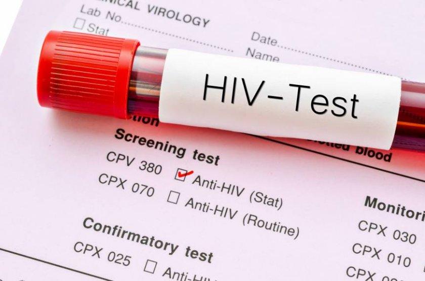 Световна сензация: Май идва край на СПИН-а
