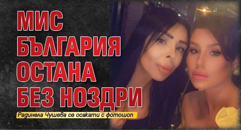 Мис България остана без ноздри