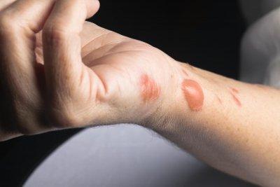 Как да лекуваме белези от изгаряния