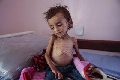7500 деца убити или ранени в Йемен