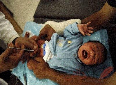 Ампутираха пениса на бебе след объркано обрязване