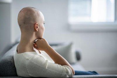 Откриха как да се запази косата при химиотерапия