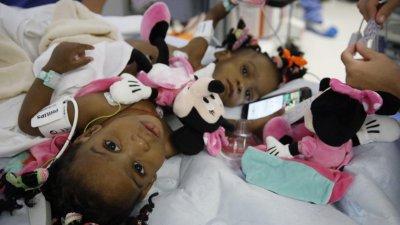 Разделиха сиамски близначки в лионска болница