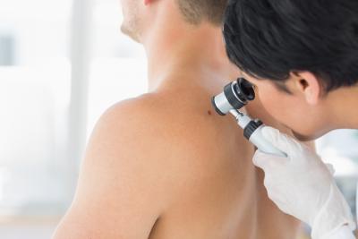 4300 случая на кожен карцином се диагностицират годишно у нас