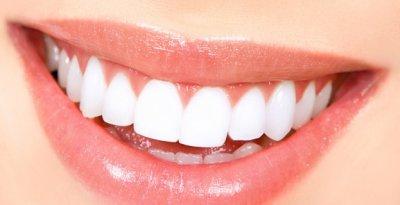 Как да избелим зъбите в домашни условия