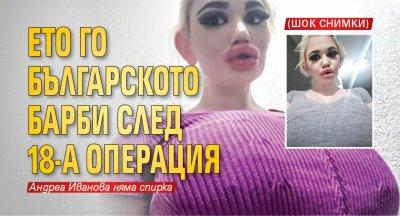 Ето го българското Барби след 18-а операция (Шок снимки)