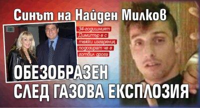 Синът на Найден Милков обезобразен след газова експлозия