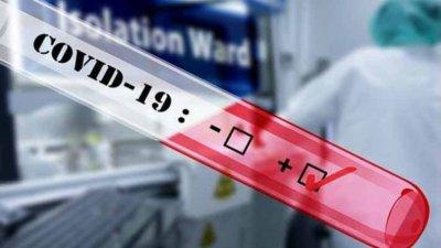 COVID-19: Нови 77 заразени и един починал за денонощие