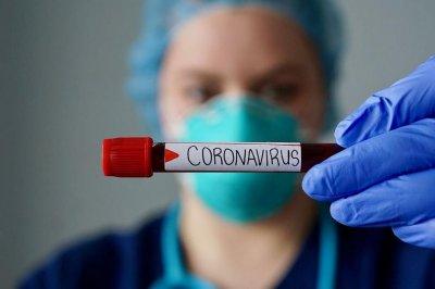 Чехия затяга обръча заради скок на заразените