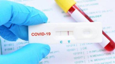 Словакия започна масово тестване за COVID-19