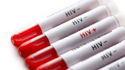 НПО-та предлагат законови промени за ефективна превенция срещу ХИВ