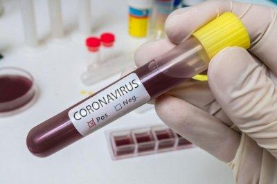 """Четири """"орлета"""" пипнаха коронавирус"""