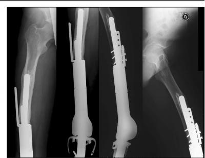 Наши хирурзи извършиха уникална операция на дете