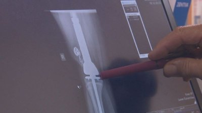 Уникална операция: Лекари спасиха живота на 13-годишно дете със специална протеза